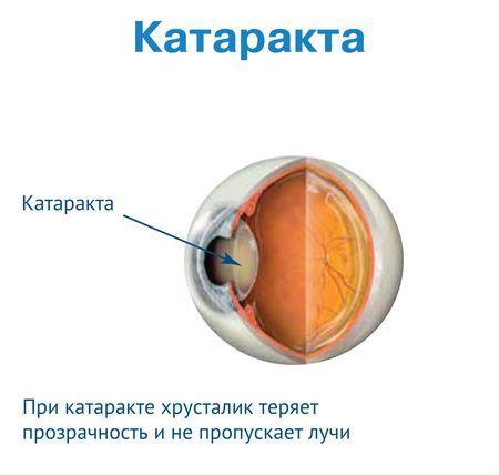 Какие хрусталики лучше выбрать при катаракте