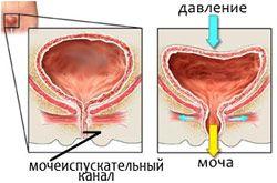 Какие лекарства от недержания мочи для женщин?