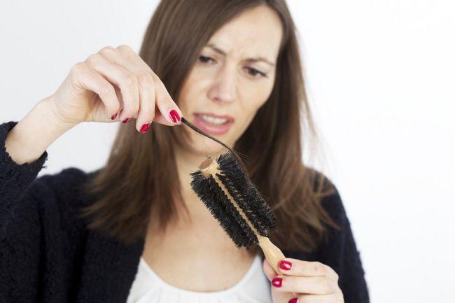 Какие витамины пить при выпадении волос: отзывы и советы специалистов