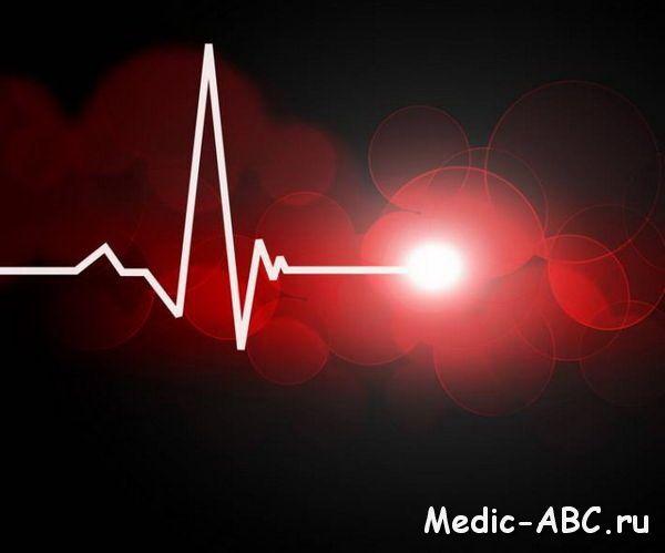 Serce cardiogram