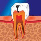 Кариес зубов причины и профилактика