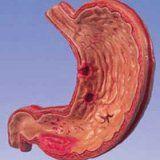 Клиника язвенной болезни желудка