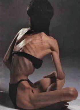 Когда худеть опасно нервная анорексия болезнь xxi века