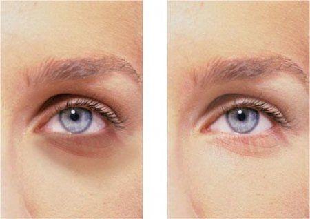 Красные белки глаз и отеки под глазами