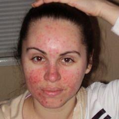 Прыщи, акне – красные пятна на лице могут быть обусловлены гиперактивностью сальных желез