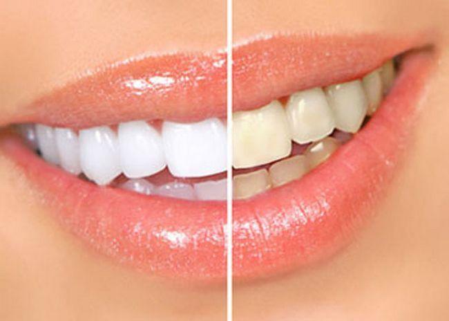 Лазерное отбеливание зубов: цена