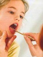 Лечение ангины у маленьких детей