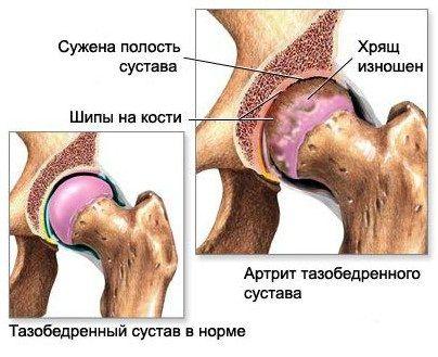 Лечение и причины наростов на суставах