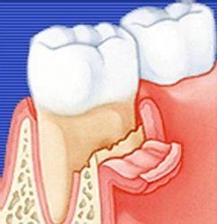Лечение и симптомы остеомиелита челюсти