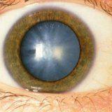 Лечение катаракты в пожилом возрасте