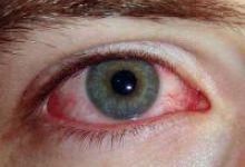 Симптомы коньюктивита у взрослых фото 3