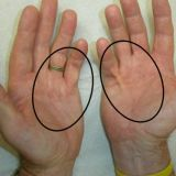 Лечение контрактуры и болезни Дюпюитрена