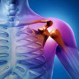 Лечение остеогенной саркомы у человека