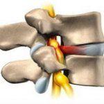 Międzykręgowych przepuklina kręgosłupa szyjnego