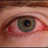 Народная медицина при конъюнктивите глаз