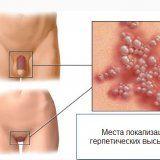 Народные средства для лечения генитального герпеса