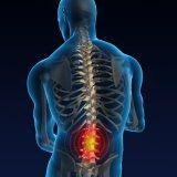 Народные средства лечения межпозвоночной грыжи