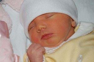 Новорожденная желтушка