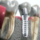 Одномоментная имплантация в стоматологической практике