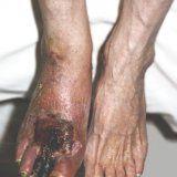 Оперативное лечение гангрены ноги