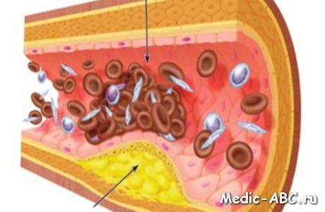 Основные причины развитие атеросклероза