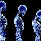 Остеопороз ранние признаки диагностика профилактика и лечение