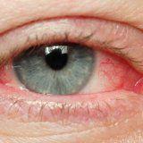 Острая и хроническая вирусная инфекция глаз