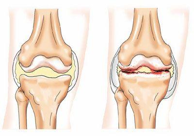 Отложение солей в суставах и их лечение