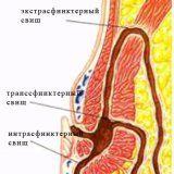 Парапроктит болезни прямой кишки