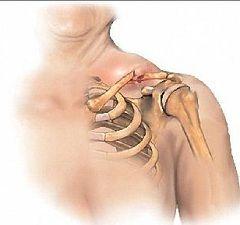 Смещение плеча - симптом перелома ключицы со смещением