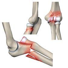Перелом локтевого отростка локтевой кости