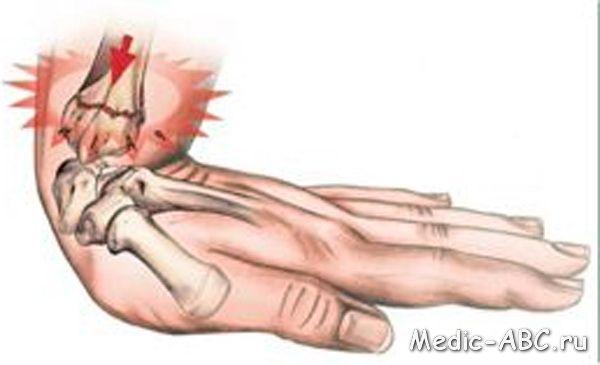 Перелом руки, симптомы и методы лечения