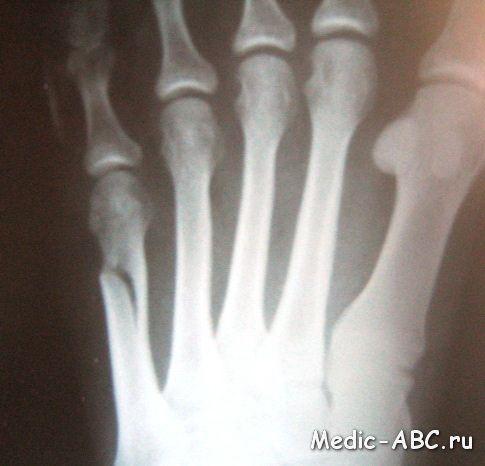 Переломы 5 плюсневой кости стопы