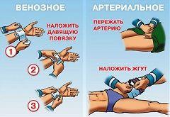 Принцип оказания первой помощи при венозном и артериальном кровотечениях