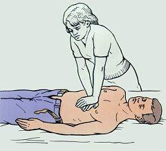 Непрямой массаж сердца - первая помощь при несчастном случае, если нет дыхания