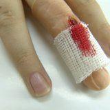 Первая помощь при повреждении пальцев
