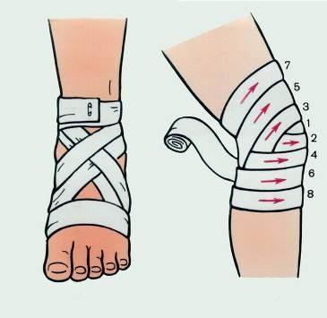 Фиксация травмированной конечности при растяжении связок