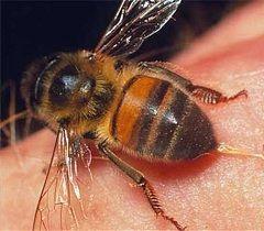 Primul ajutor pentru o intepatura de albina