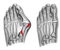 Смещение головки плюсневой кости