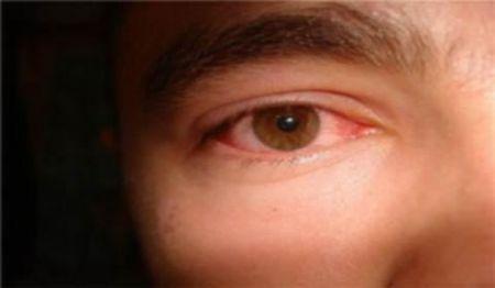 Почему глаза взрослого всегда красные