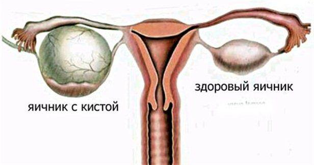 Учащенное безболезненное мочеиспускание у женщин: в чем опасность данного симптома?