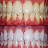 Wskazania i przeciwwskazania do bielenia zębów