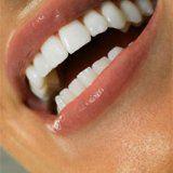Препараты для удаления зубного камня и налета