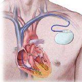 Приборы ЭКС для работы сердца