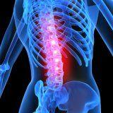 Причины и развитие заболевания остеопороз