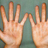 Причины и симптомы контактной аллергии