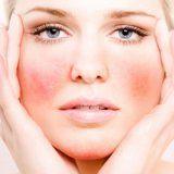 Причины купероза на коже лица