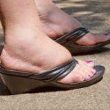 Причины отекания ног и народные средства лечения