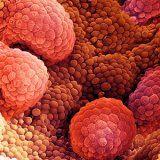 Причины рака предстательной железы
