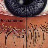 Причины возникновения и разновидности блефарита